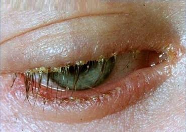 image of blepharitis