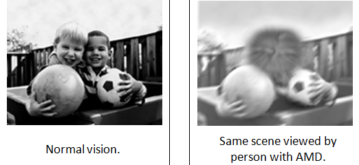 macular degeneration picture showing normal vision compared to blurred vision